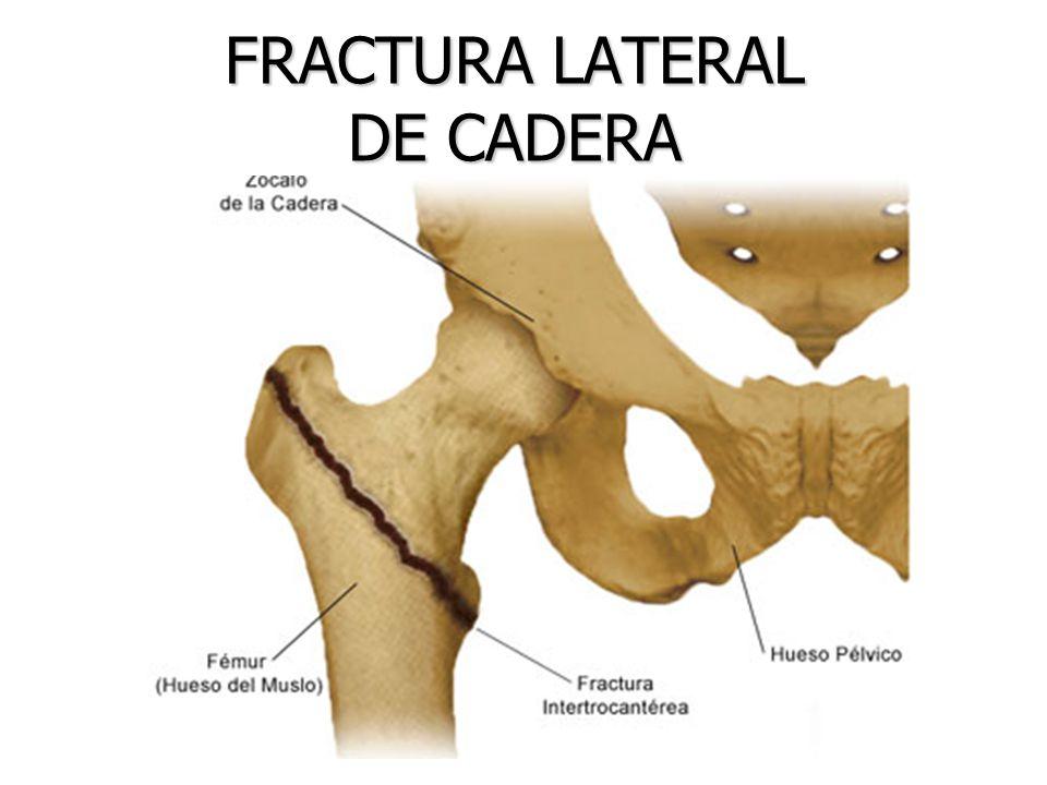 Ortopedia Palmas | Cadera