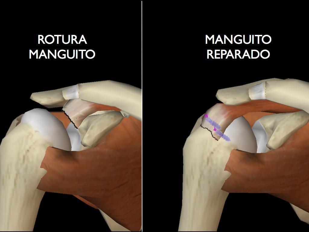 Ortopedia Palmas | Hombro