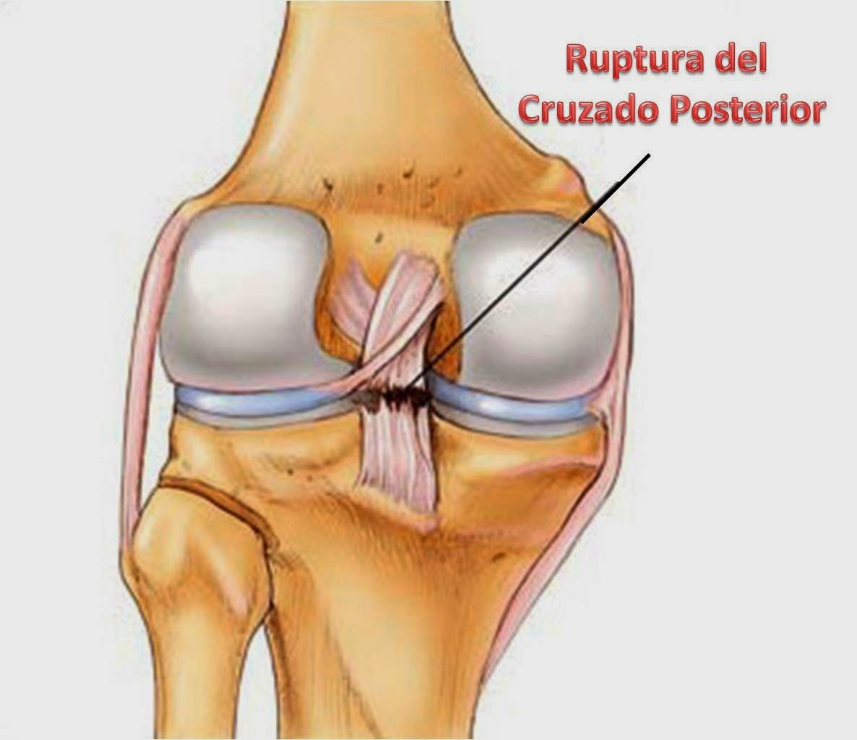 Ortopedia Palmas   Rodilla